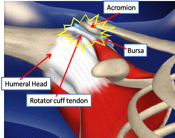 Shoulder impingement syndrome: everything you want to know ...