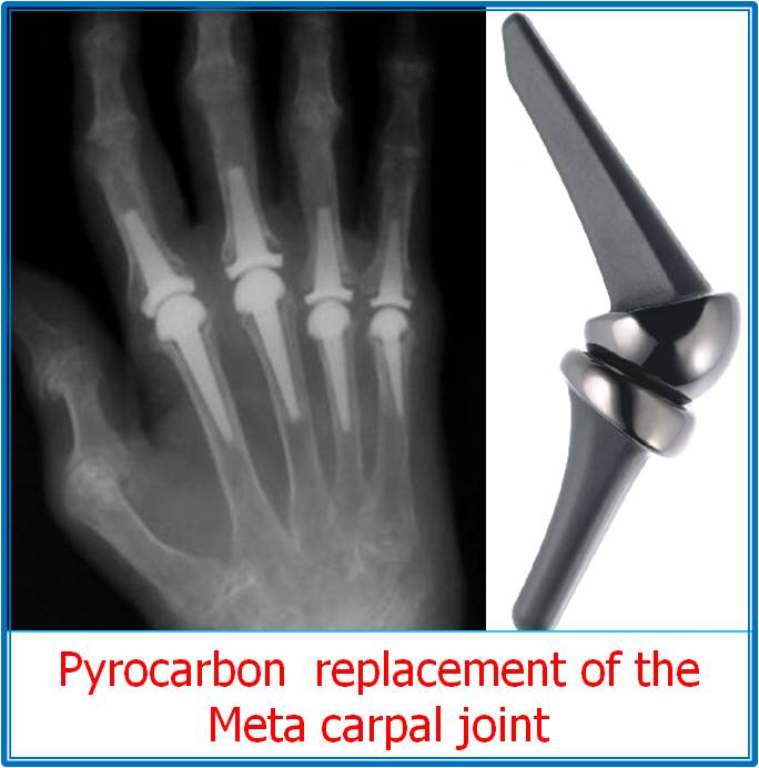 small joint replacements in the hand