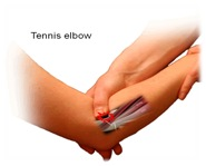 Extensor Tendon Repair Protocol http://www.guildfordupperlimb.co.uk/elbow/tennis-elbow